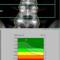 φωτογραφία dexa scan για μέτρηση οστικής πυκνότητας για έλεγχο και πρόληψη της οστεοπόρωσης
